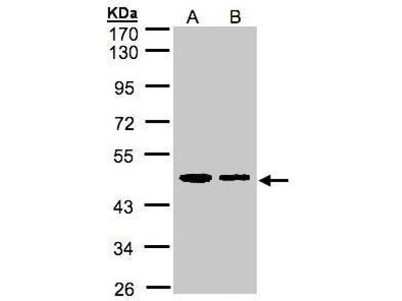 Western Blotting (WB) image for anti-Endoplasmic Reticulum Protein 44 (ERP44) (Center) antibody (ABIN2856411)