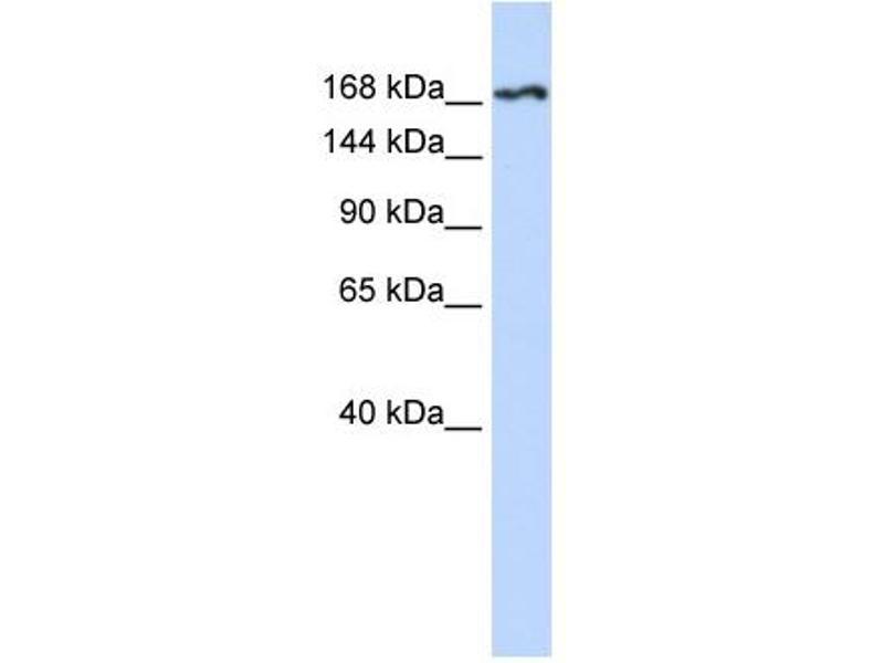 Western Blotting (WB) image for anti-Kinase insert Domain Receptor (A Type III Receptor tyrosine Kinase) (KDR) (N-Term) antibody (ABIN2792307)