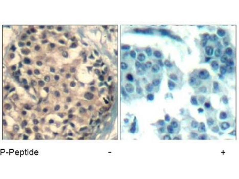 Image no. 1 for anti-HDAC4/HDAC5/HDAC9 (pSer220), (pSer246), (pSer259) antibody (ABIN319279)