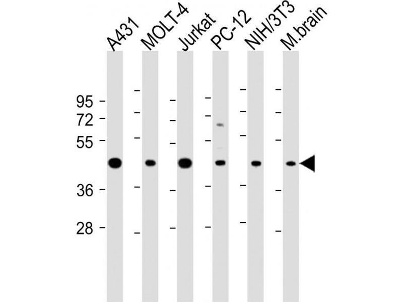Western Blotting (WB) image for anti-Argininosuccinate Synthase 1 (ASS1) (AA 192-221), (Center) antibody (ABIN390810)