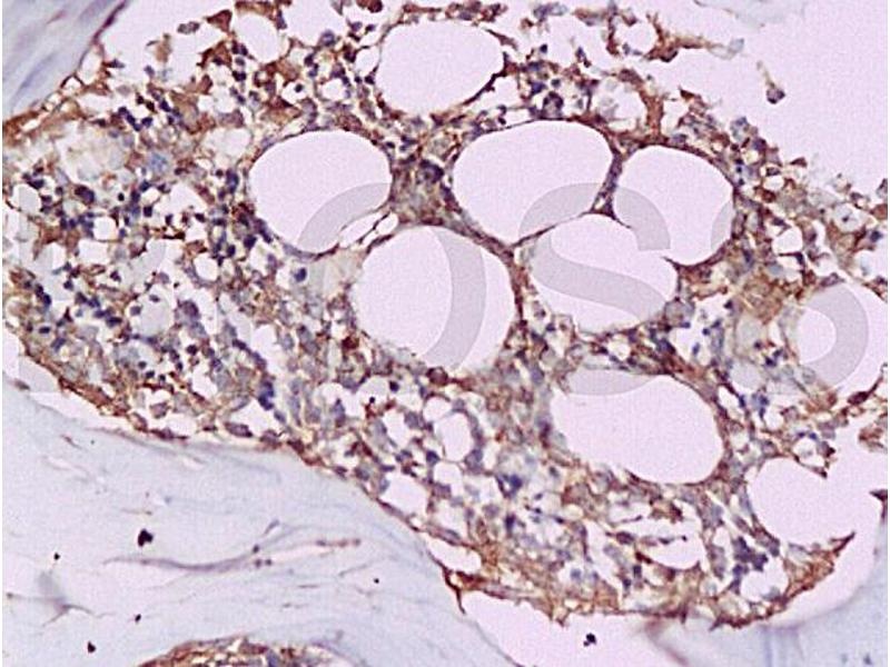 Immunohistochemistry (IHC) image for anti-Tumor Necrosis Factor (Ligand) Superfamily, Member 11 (TNFSF11) (AA 235-280) antibody (ABIN668556)