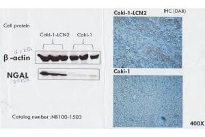 Immunohistochemistry (Paraffin-embedded Sections) (IHC (p)) image for anti-Lipocalin 2 (LCN2) antibody (ABIN250360)