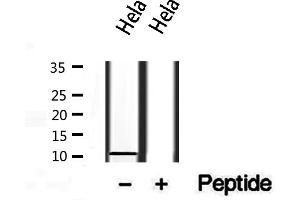 Image no. 1 for anti-S100 Calcium Binding Protein A14 (S100A14) antibody (ABIN6264901)