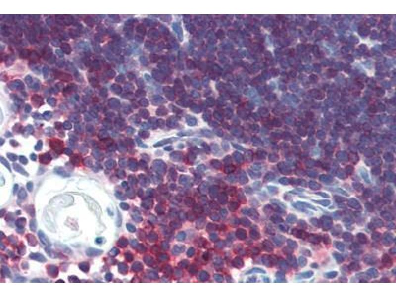 Immunohistochemistry (Paraffin-embedded Sections) (IHC (p)) image for anti-CD3E antibody (CD3e Molecule, epsilon (CD3-TCR Complex)) (AA 156-168) (ABIN462010)