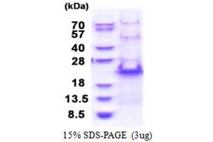 Image no. 1 for Ribosomal Protein S20 (RPS20) (AA 1-142) protein (His tag) (ABIN5853428)
