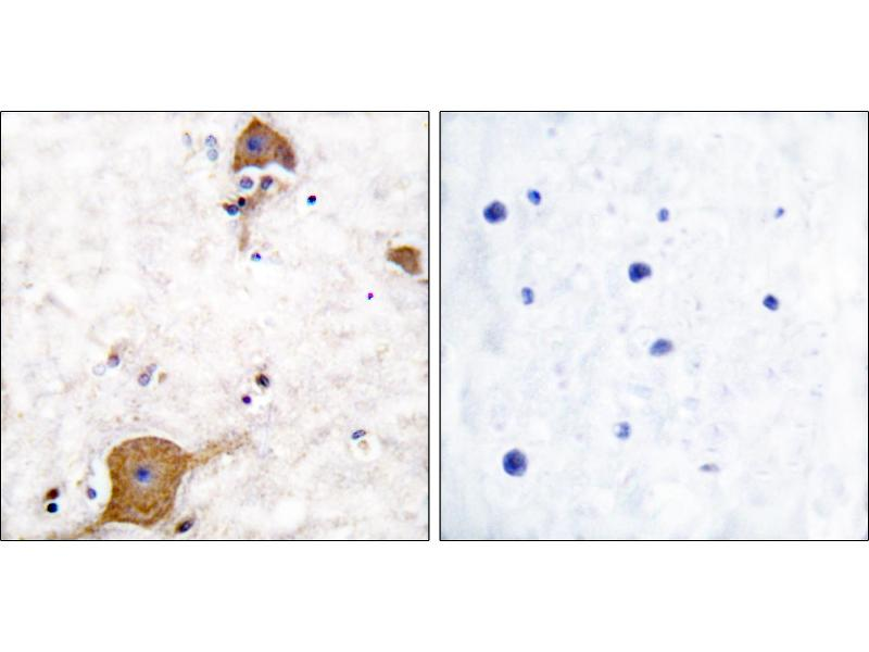 Immunohistochemistry (IHC) image for anti-Neuregulin 1 antibody (NRG1) (Isoform 10) (ABIN2449272)