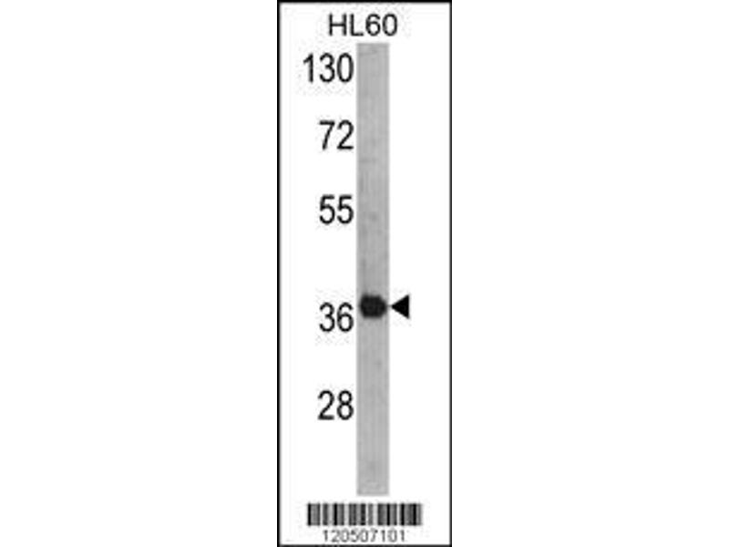 Western Blotting (WB) image for anti-AHA1, Activator of Heat Shock 90kDa Protein ATPase Homolog 1 (Yeast) (AHSA1) (AA 1-30), (N-Term) antibody (ABIN389425)