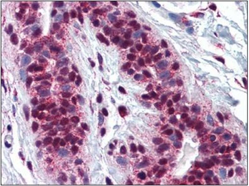 Immunohistochemistry (IHC) image for anti-cAMP Responsive Element Binding Protein 1 (CREB1) (AA 1-342) antibody (ABIN782354)