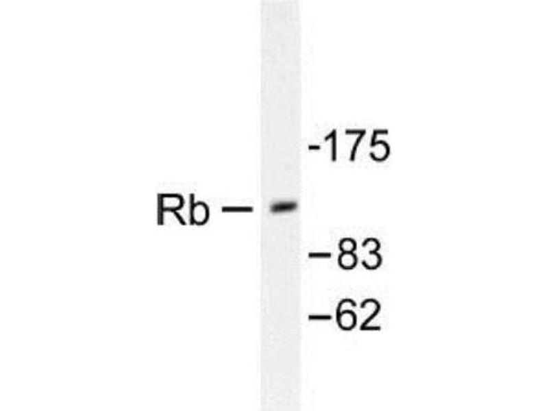 Western Blotting (WB) image for anti-Retinoblastoma 1 抗体 (RB1) (ABIN4349479)