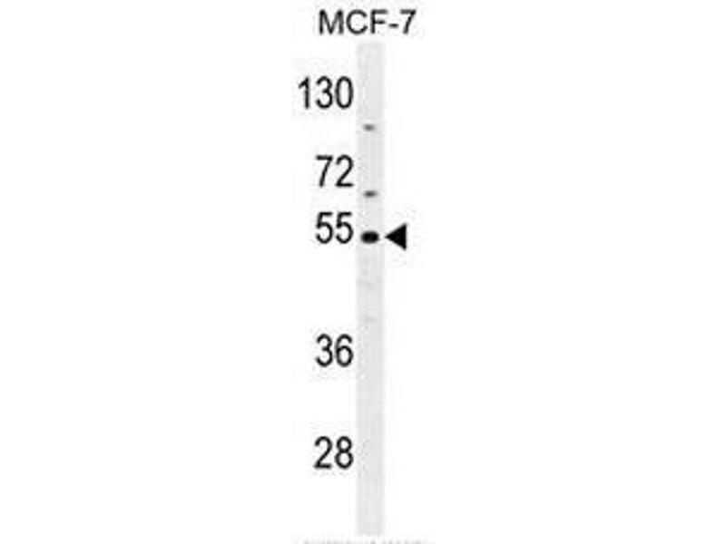 Western Blotting (WB) image for anti-CES2 (AA 343-373), (Middle Region) antibody (ABIN951482)