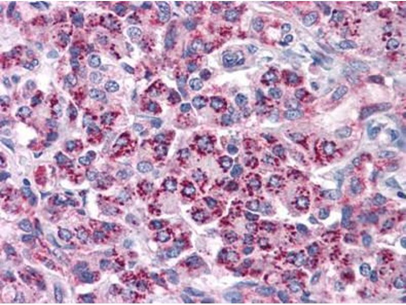 Immunohistochemistry (Paraffin-embedded Sections) (IHC (p)) image for anti-Toll-Like Receptor 3 (TLR3) antibody (ABIN615847)