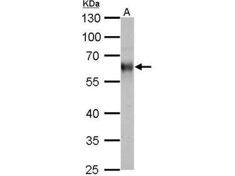 Western Blotting (WB) image for anti-Thioredoxin Reductase 1 (TXNRD1) (Center) antibody (ABIN443150)