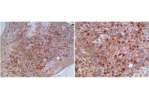 Immunohistochemistry (Paraffin-embedded Sections) (IHC (p)) image for anti-CD8 antibody (CD8a Molecule) (ABIN4295976)