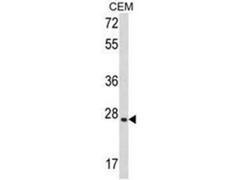 Western Blotting (WB) image for anti-LIF antibody (Leukemia Inhibitory Factor) (AA 79-109) (ABIN453168)