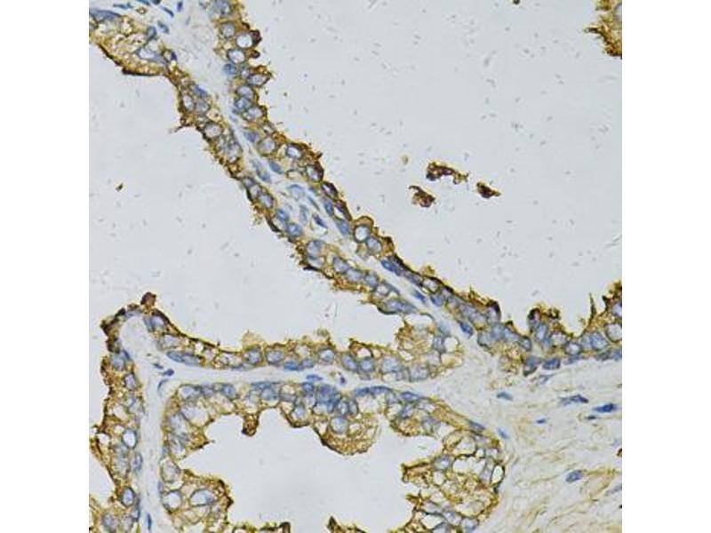 Image no. 4 for anti-Ribosomal Protein, Large, P0 (RPLP0) antibody (ABIN6568094)
