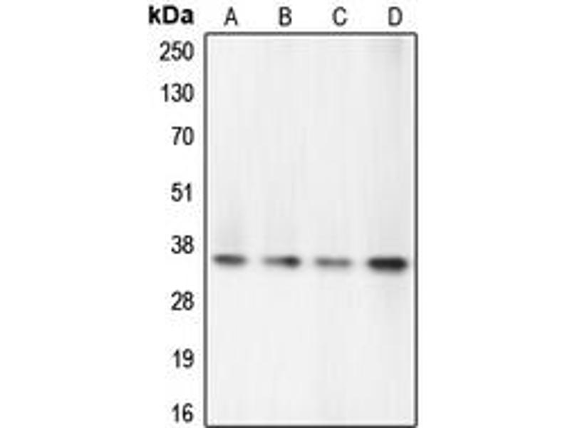 Western Blotting (WB) image for anti-Caspase 7 antibody (Caspase 7, Apoptosis-Related Cysteine Peptidase) (N-Term) (ABIN2707392)