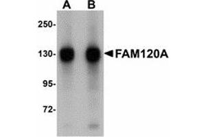 Image no. 1 for anti-Family with Sequence Similarity 120A (FAM120A) (Internal Region) antibody (ABIN478146)