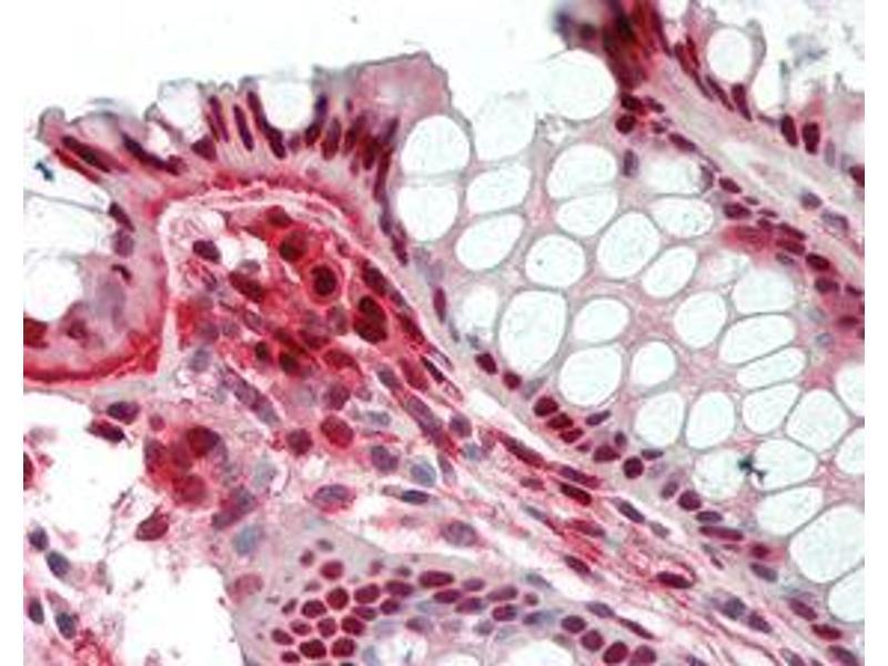 Immunohistochemistry (IHC) image for anti-Nicotinamide phosphoribosyltransferase (NAMPT) antibody (Biotin) (ABIN1169029)