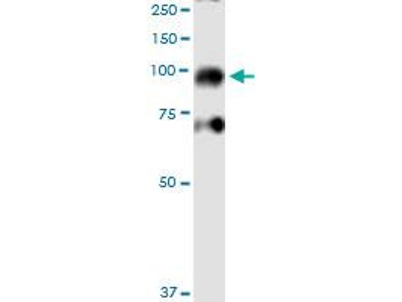 Western Blotting (WB) image for anti-Inhibitor of kappa Light Polypeptide Gene Enhancer in B-Cells, Kinase beta (IKBKB) (AA 3-120), (partial) antibody (ABIN516986)