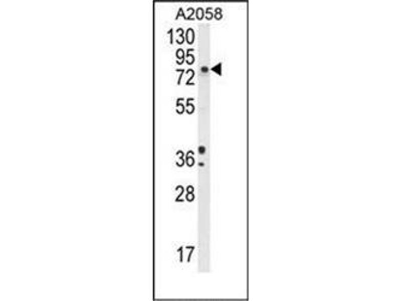 Western Blotting (WB) image for anti-Dopamine beta-Hydroxylase (Dopamine beta-Monooxygenase) (DBH) (AA 34-64), (N-Term) antibody (ABIN951969)