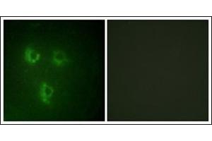 Image no. 1 for anti-Prostate Transmembrane Protein, Androgen Induced 1 (PMEPA1) antibody (ABIN954212)