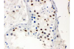 Image no. 1 for anti-Menage A Trois Homolog 1, Cyclin H Assembly Factor (Xenopus Laevis) (MNAT1) (AA 92-278) antibody (ABIN3043583)