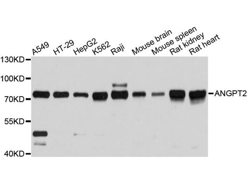 Western Blotting (WB) image for anti-Angiopoietin 2 (ANGPT2) antibody (ABIN5962953)