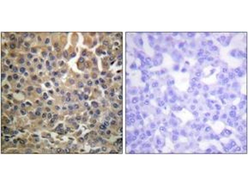 Immunohistochemistry (IHC) image for anti-ERBB4 antibody (V-Erb-A erythroblastic Leukemia Viral Oncogene Homolog 4 (Avian)) (pTyr1284) (ABIN1531611)