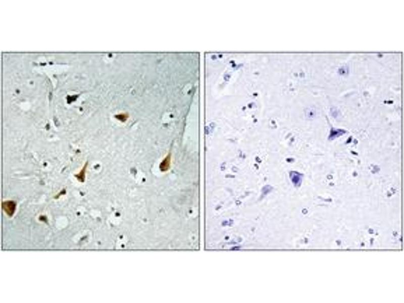 Immunohistochemistry (IHC) image for anti-Signal Transducer and Activator of Transcription 6, Interleukin-4 Induced (STAT6) (AA 608-657) antibody (ABIN1533015)