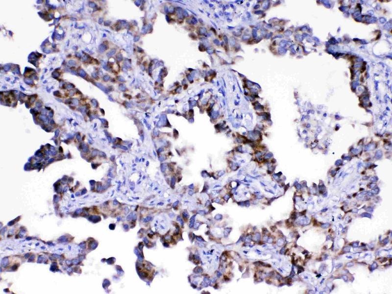 Immunohistochemistry (IHC) image for anti-Argininosuccinate Lyase (ASL) antibody (ABIN5518971)