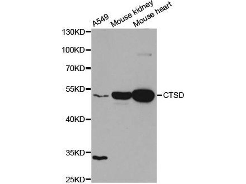 Western Blotting (WB) image for anti-Cathepsin D (CTSD) antibody (ABIN1872099)