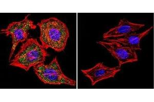 Immunofluorescence (IF) image for anti-Nuclear Factor of Activated T-Cells, Cytoplasmic, Calcineurin-Dependent 1 (NFATC1) (AA 1-654) antibody (ABIN152773)
