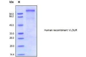 Image no. 1 for Very Low Density Lipoprotein Receptor (VLDLR) (Active) protein (His tag) (ABIN1981485)