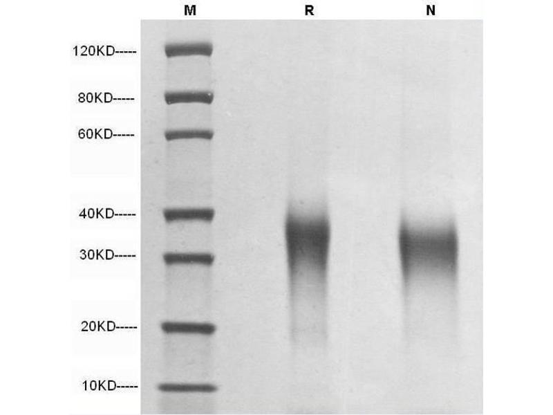 SDS-PAGE (SDS) image for Erythropoietin (EPO) (AA 28-193) (Active) protein (ABIN987828)