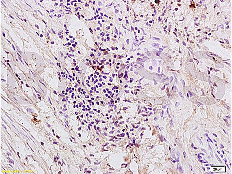 Immunohistochemistry (IHC) image for anti-Coagulation Factor II (thrombin) Receptor (F2R) (AA 290-315) antibody (ABIN728743)