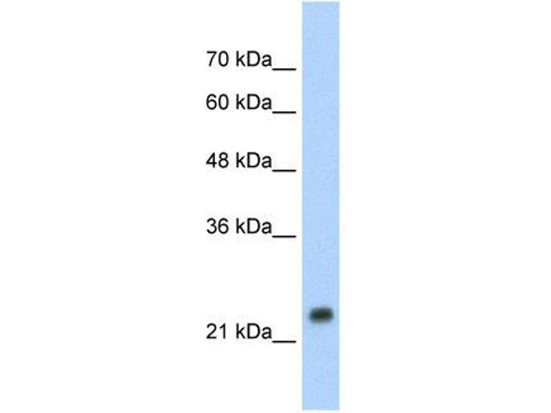 Western Blotting (WB) image for anti-Heat Shock 27kDa Protein 1 (HSPB1) (C-Term) antibody (ABIN2779293)