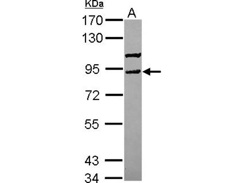 Western Blotting (WB) image for anti-Vacuolar Protein Sorting 41 Homolog (S. Cerevisiae) (VPS41) (AA 226-461) antibody (ABIN558241)