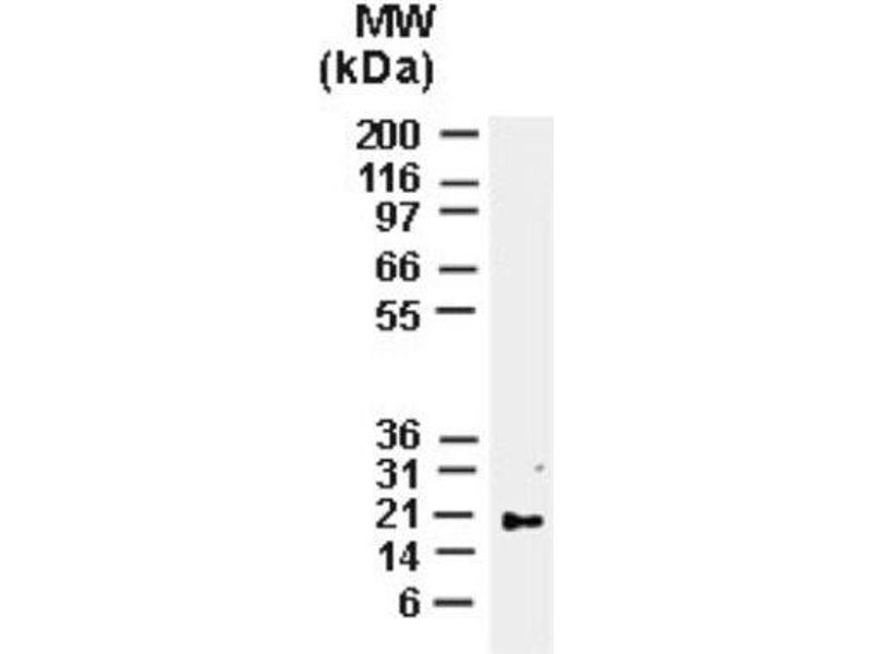 Western Blotting (WB) image for anti-BCL2-Associated X Protein (BAX) antibody (ABIN4283100)