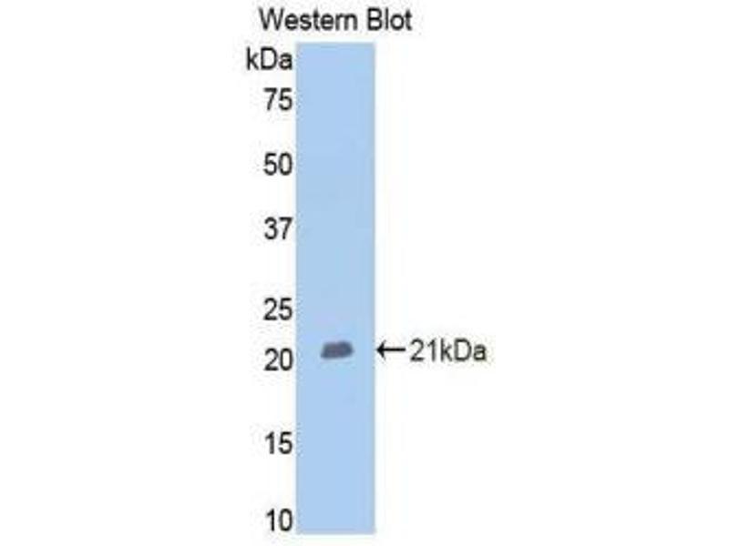 Western Blotting (WB) image for anti-Membrane Metallo-Endopeptidase (MME) (AA 382-538) antibody (ABIN1175016)