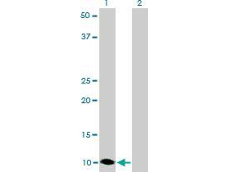 Western Blotting (WB) image for anti-S100A6 antibody (S100 Calcium Binding Protein A6) (Met16) (ABIN396706)