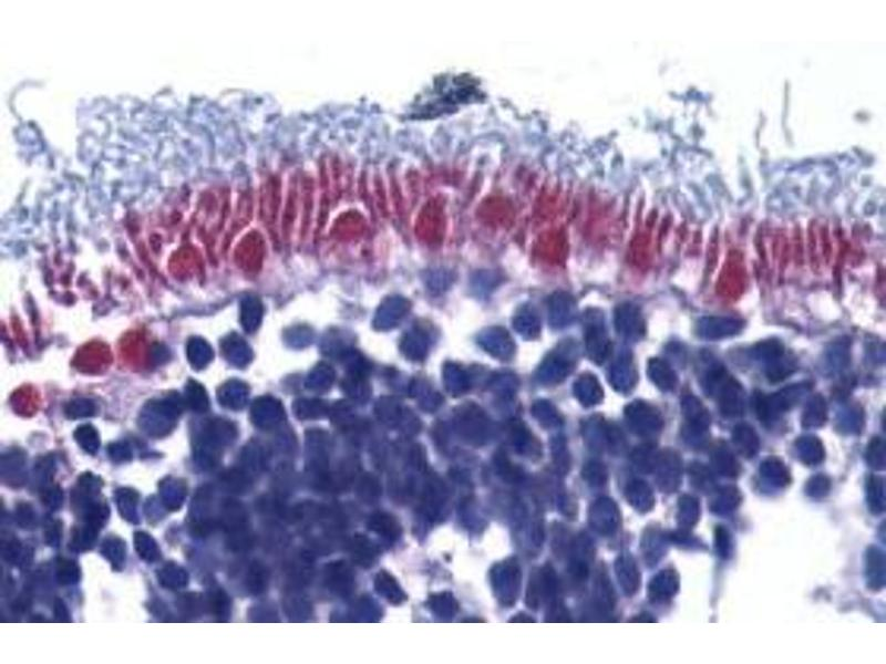 Immunohistochemistry (Paraffin-embedded Sections) (IHC (p)) image for anti-AIFM1 antibody (Apoptosis-Inducing Factor, Mitochondrion-Associated, 1) (Intermediate Domain) (ABIN499237)