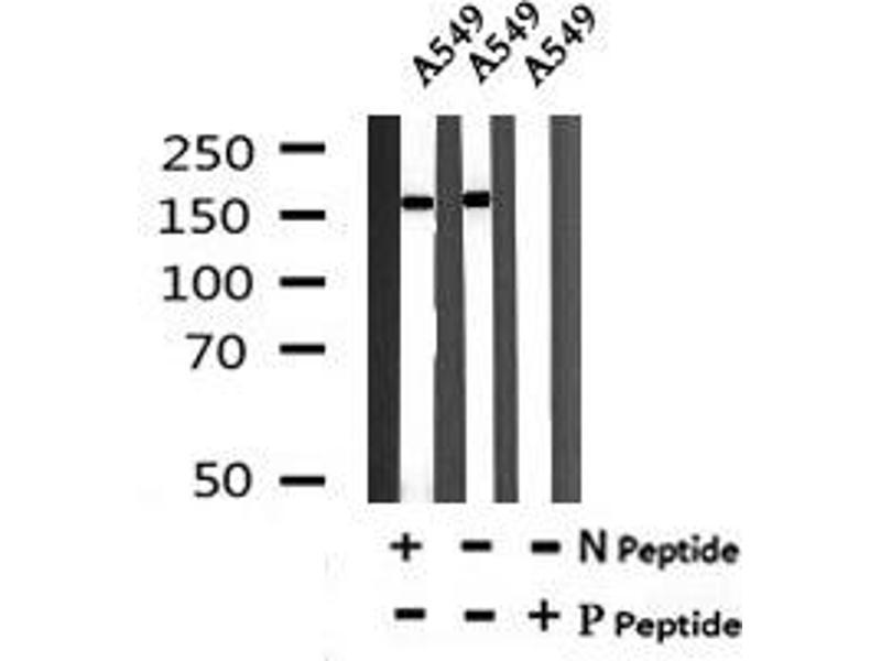 Image no. 4 for anti-LATS, Large Tumor Suppressor, Homolog 1 (Drosophila) (LATS1) (pTyr283) antibody (ABIN6269759)