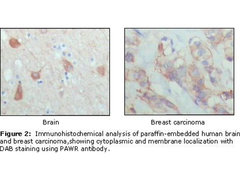 Immunohistochemistry (IHC) image for anti-Coagulation Factor II (Thrombin) Receptor-Like 3 (F2RL3) (AA 1-330) antibody (ABIN1724706)