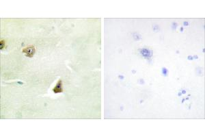 Image no. 1 for anti-Dual Specificity Phosphatase 6 (DUSP6) antibody (ABIN1576137)