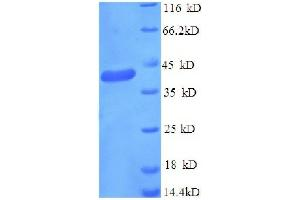 Image no. 1 for GABA(A) Receptor-Associated Protein (GABARAP) (AA 2-117), (partial) protein (GST tag) (ABIN1608032)