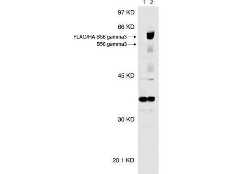 Western Blotting (WB) image for anti-Protein Phosphatase 2, Regulatory Subunit B', gamma (PPP2CA) antibody (ABIN151944)