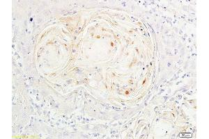 Immunohistochemistry (Paraffin-embedded Sections) (IHC (p)) image for anti-Forkhead Box O3 (FOXO3) (AA 290-340), (pSer318), (pSer321) antibody (ABIN684688)