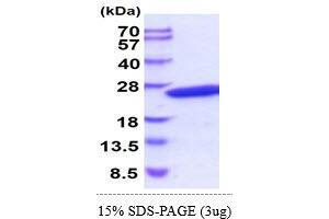Image no. 1 for Crystallin, gamma D (CRYGD) (AA 1-174) protein (His tag) (ABIN5854999)