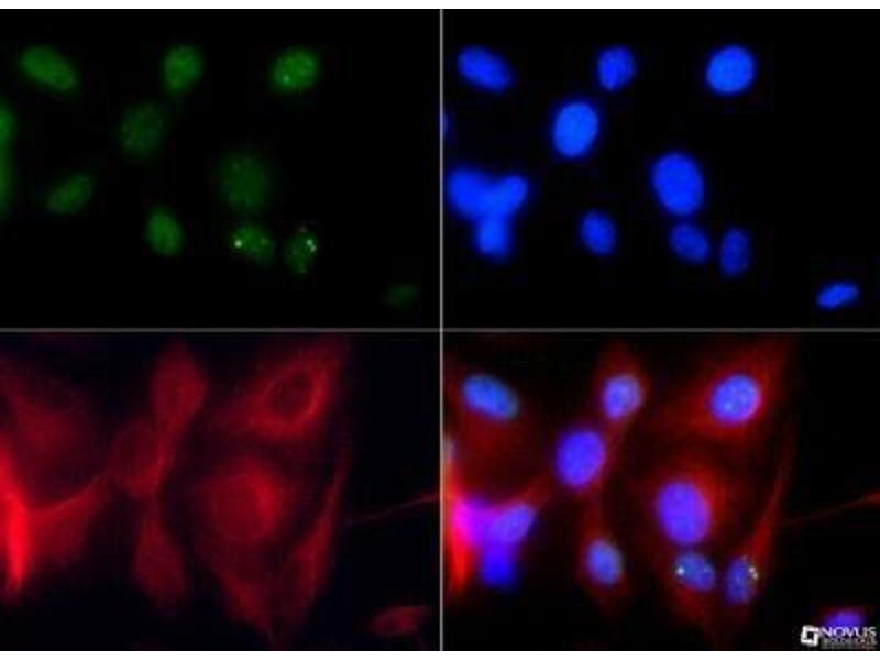 Immunofluorescence (IF) image for anti-TP53BP1 antibody (Tumor Protein P53 Binding Protein 1) (AA 350-400) (ABIN151770)