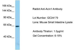 Image no. 1 for anti-Apoptotic Chromatin Condensation Inducer 1 (ACIN1) (N-Term) antibody (ABIN2787611)